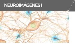 neuroimagenes2