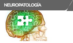 neuropalogia