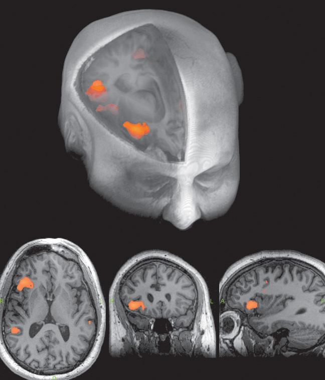 Áreas funcionales de cerebro representativas del lenguaje