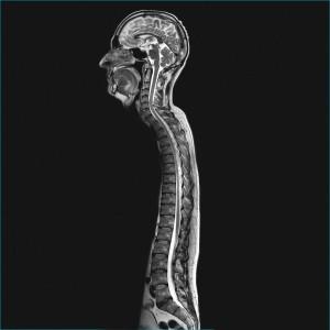 Imagen de toda la columna incluyendo el cráneo en corto tiempo