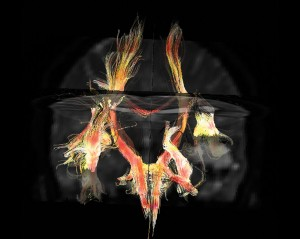 Vías cerebrales en 3D