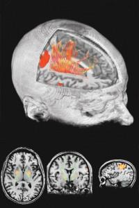Volumen con tractografía y áreas de cerebro funcionando en tiempo real