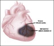 ¿Qué es y cómo prevenir un infarto agudo de miocardio?