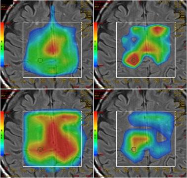 Ventajas del Resonador 3 Tesla (alto campo) en el estudio de patologías invalidantes