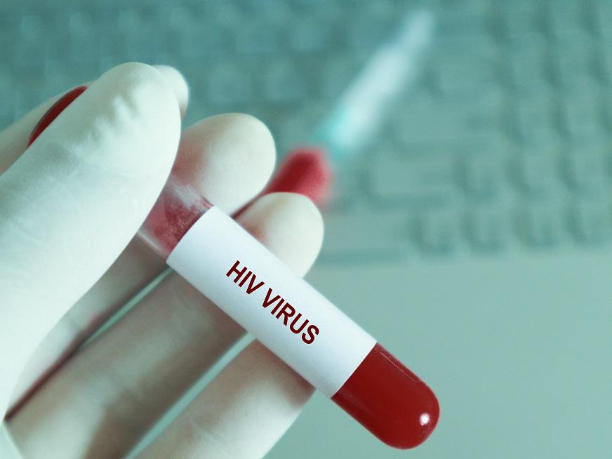 ¿Qué es el SIDA?