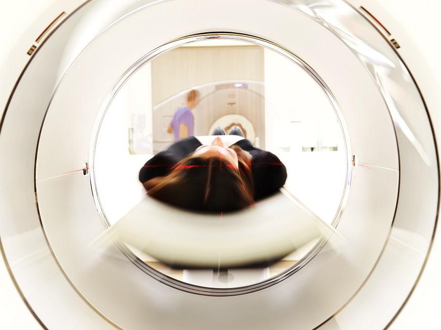 Resonancia magnética cardíaca, ¿una nueva técnica de provocación de isquemia?