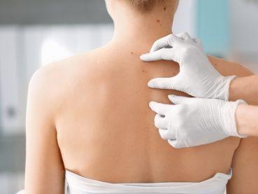 Cómo identificar el cáncer de piel | Grupo Gamma