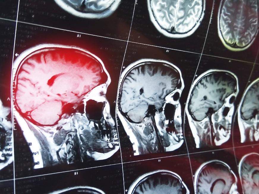 """""""Ahora podemos ver el cerebro en funcionamiento"""""""