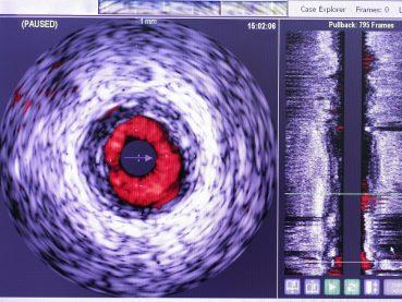 Ultrasonido Intravascular (IVUS) y Caracterización Tisular | Grupo Gamma