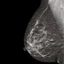 Mamografía computarizada (CR)