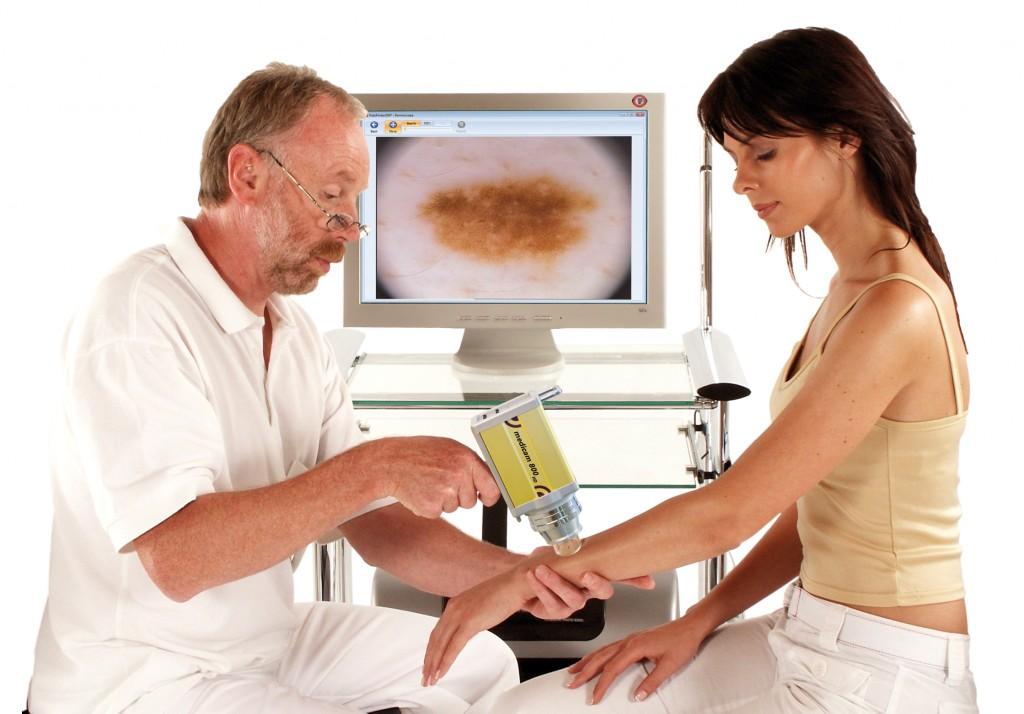 Dermatoscopía digital: una importante herramienta en el diagnóstico precoz de melanoma