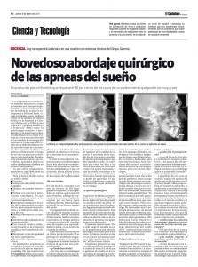 Cirugía novedosa para tratamiento de apneas del sueño