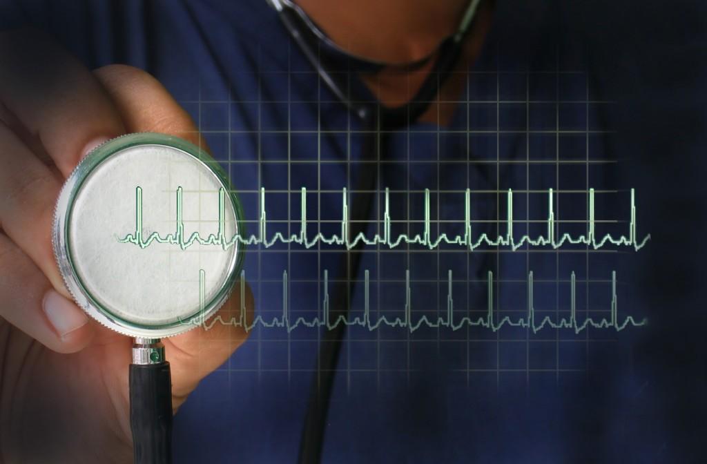 Muerte súbita: ¿se puede prevenir?