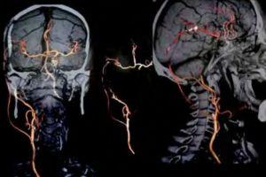 Bypass cerebral de alto flujo con vena safena interna