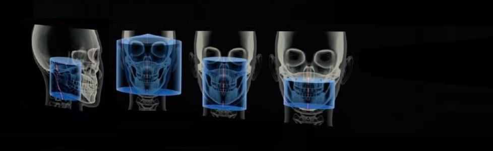 Tomografía Computada Cone Beam