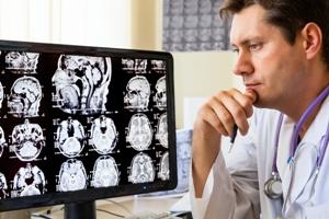 Rol del PET-CT en pacientes con Ataxia Cerebelosa