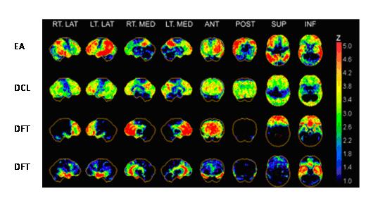 Aplicaciones del PET en el estudio de las demencias