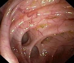 Nota Sigmoiditis - Divertículos Sigmoideos