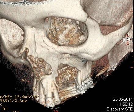 TAC con reconstrucción tridimensional (previa cirugía)