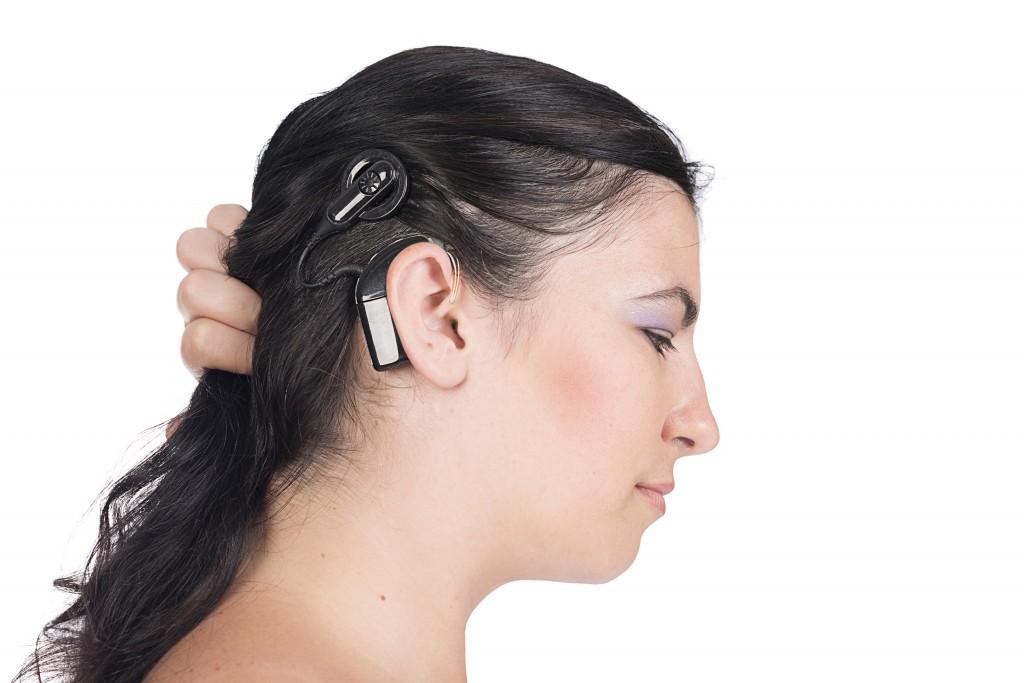 Implantes Cocleares: Volver a escuchar