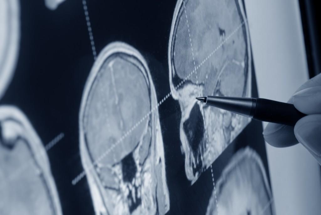 Hipertensión Arterial y Neurociencias