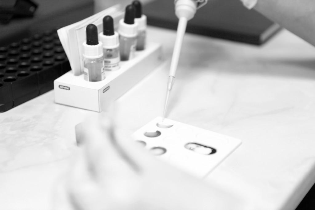 Trombosis: ¿Se puede evaluar el riesgo de desarrollarla?