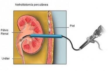 tratamiento mininvasivo calculos renales