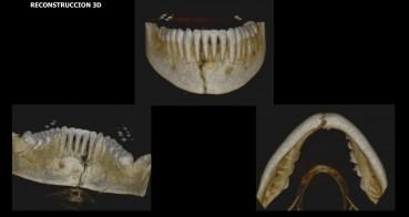 Reconstrucción 3D | Visualización fractura de mandíbula.