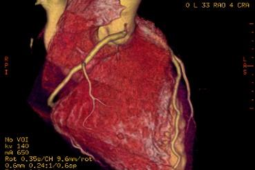 Tomografía Cardíaca Multislice: Prevención y Diagnóstico