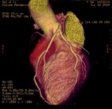 Imagen de Tomografía Cardíaca Multislice