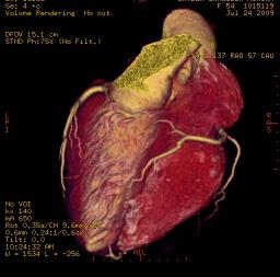 Tomografía Cardíaca Multislice: Ventajas para Prevenir