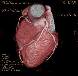 Imagen Tomografía Cardíaca Multislice