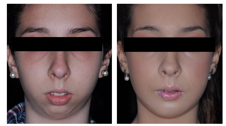 Cirugía mandíbula: antes y después