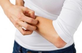 Enfermedad Celíaca y sus manifestaciones en la Piel