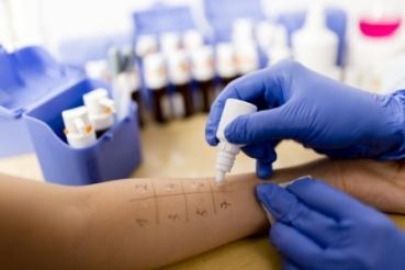 Pruebas cutáneas en alergias: ¿Para qué sirve el prick test?