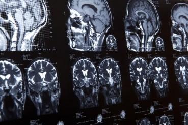 ¿Por qué un Simposio Nacional sobre Neurociencias y Adicciones?
