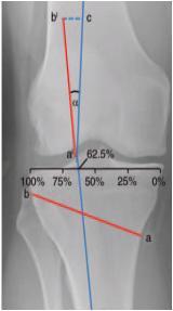 Osteotomía de Apertura de Rodilla 3
