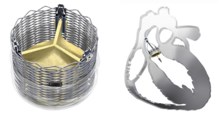 El caso de la semana: Implante de Válvula Reposicionable