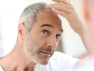 ¿Qué es la Alopecia Areata?