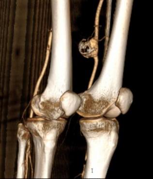 Síndrome isquémico agudo de miembro inferior izquierdo