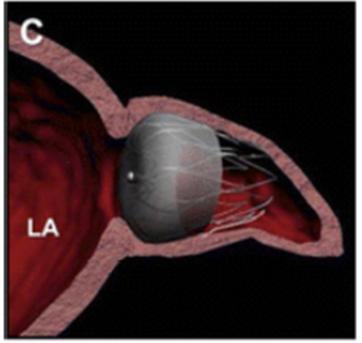 Nuevas estrategias para la prevención de Cardioembolia