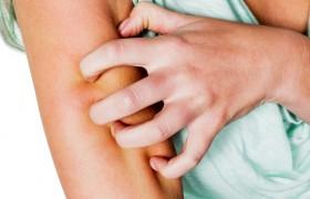 Dermatitis Atópica: Tratamiento