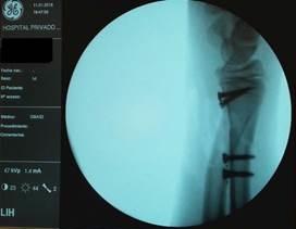 Implantes traslúcidos - Postoperatorio - Grupo Gamma