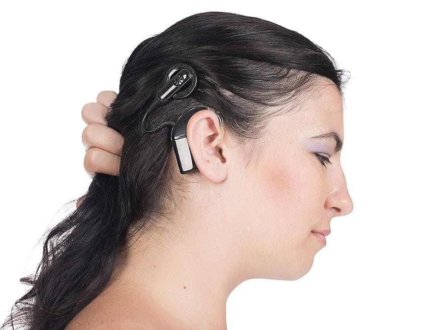 """Implante Coclear: """"Oír"""" nuevamente"""