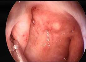 Cirugía endoscópica- Hipoacusia de Trasmisión - Dr. Héctor Ruiz - Grupo Gamma-min