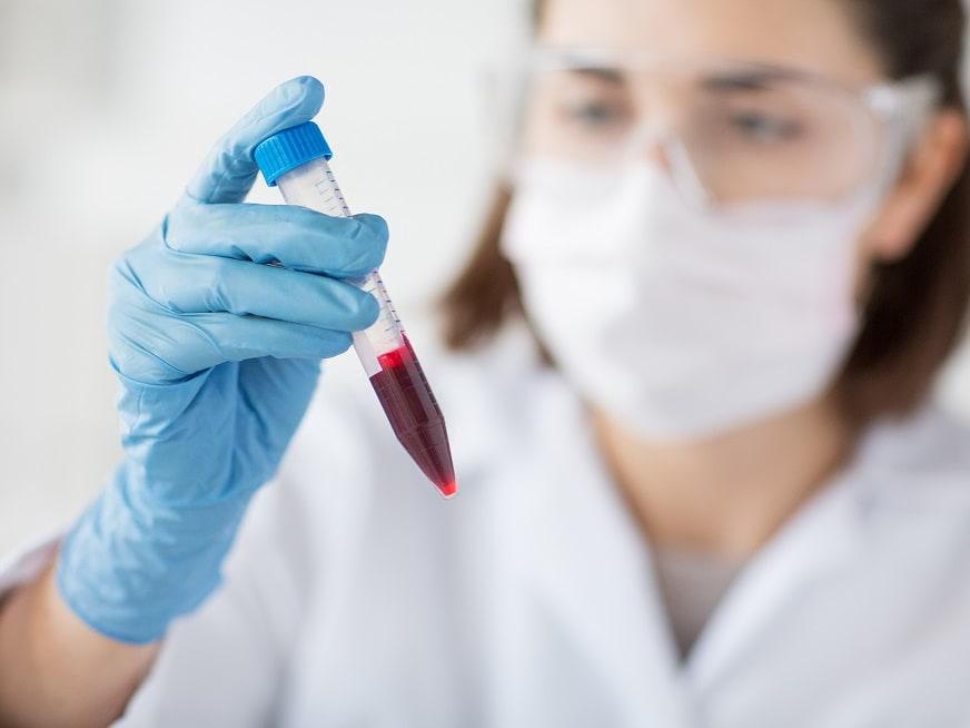 Manejo de la anemia en pacientes con cardiopatías