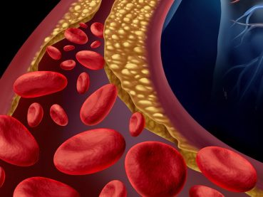 Tromboembolismo venoso - Grupo Gamma