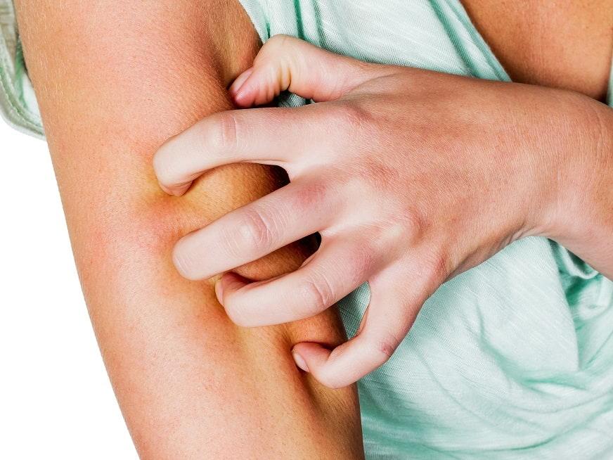 Escabiosis o sarna humana: Evitar el contagio
