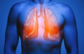 Ateneo Cardiología | Hipertensión Pulmonar | Grupo Gamma