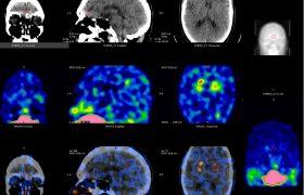 Spect Cerebral con Trodat | Grupo Gamma